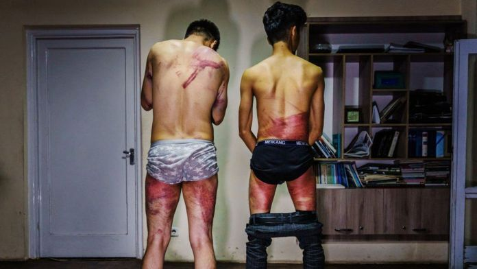 Two Afghan journalists who say they were badly beaten by the Taliban after covering protests in Kabul