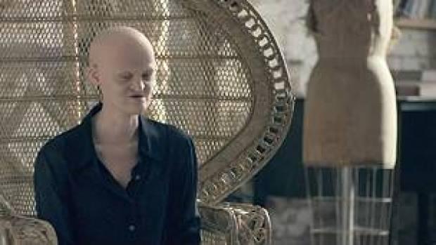 La modelo Melanie Goydos, que nació con una mutación genética llamada displasia ectodérmica, durante una entrevista con la BBC