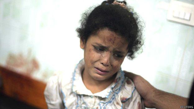 Niña herida en un ataque israelí a una escuela de la ONU en Gaza en julio de 2014
