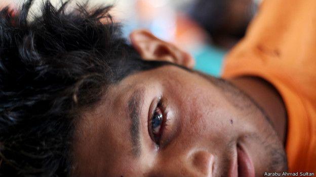 कश्मीर में छर्रों से आंखों को नुक़सान
