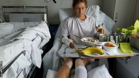 Hillary Allen in her hospital bed in Tromso