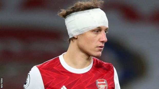 Arsenal defender David Luiz in action against Wolves after playing on with a head bandage following an accidental clash of heads with Raul Jimenez