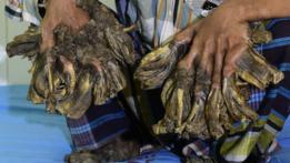 """Abdul Bajandar, el """"hombre-árbol"""" de Bangladesh"""