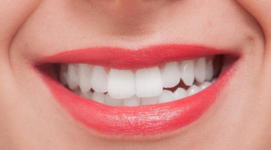 歯並び 矯正 メリット デメリット
