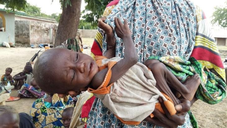 Malnourished Abductee