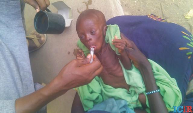 A malnourished child given improvised nutrition