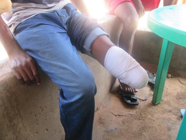 Johnson Nwibani's amputated leg