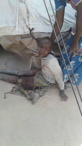 An injured child after the Rann attack