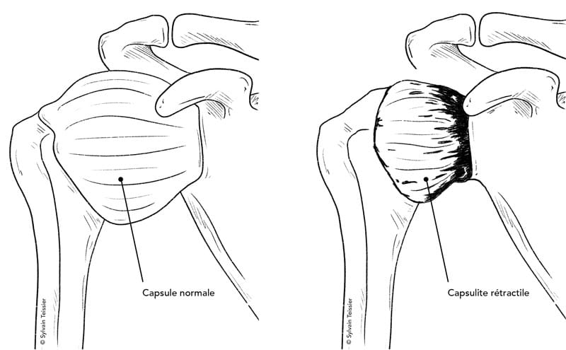 Capsulite rétractile