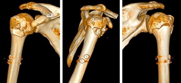 Scanner 3D Clou humérus