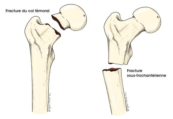 Fractures hanche