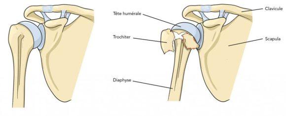 Fracture humérus