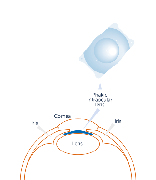 small resolution of intraocular lenses are implanted into the eye without removing the lens or carrying out any changes to the structure of the eye and are especially suitable