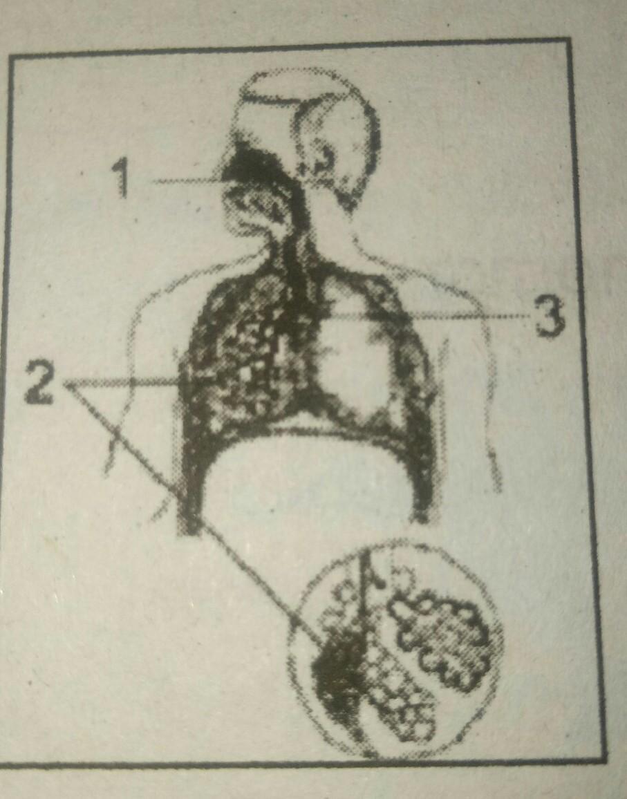 Pembungkus Paru Paru : pembungkus, Fungsi, Bagian, Ditunjuk, Angka, Adalah...., Menyaring, Udara, Masuk, Paru-paru.b., Tempat, Brainly.co.id
