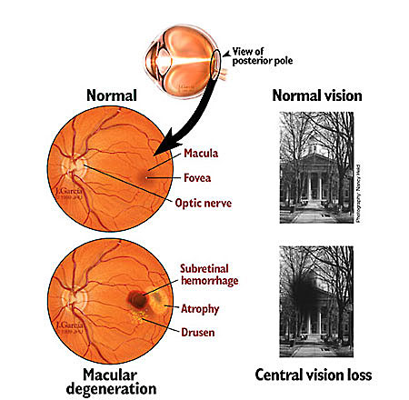 Dr Robert R. Jones M.D. Macular Degeneration