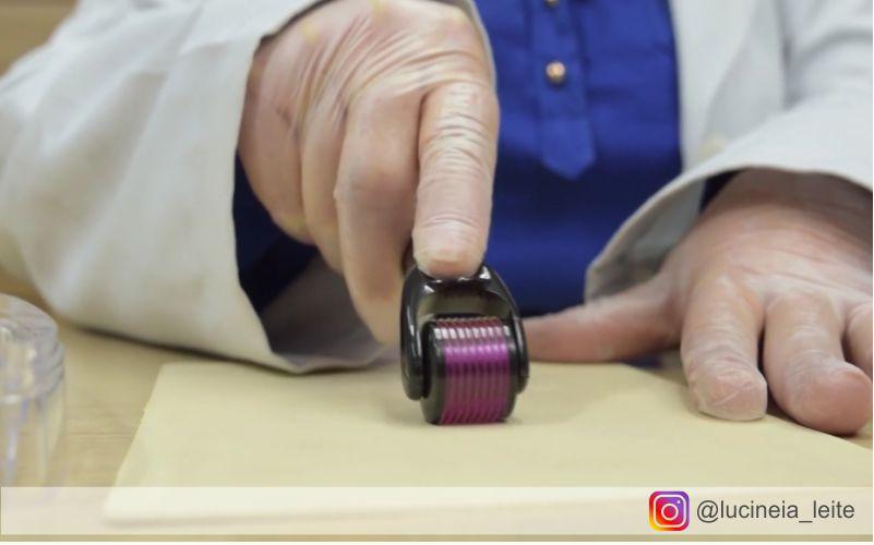 Lucineia Leite demonstrando a utilização do Roller de Microagulhamento