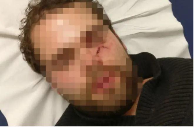 Un étudiant israélien violement agressé dans le métro de Paris pour avoir parlé hébreu