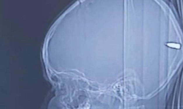 Des chirurgiens israéliens retirent une balle logée dans le cerveau d'un enfant arabe