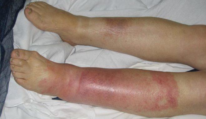 Покраснение кожи ног выше щиколотки. Причины зуда и покраснение кожи голени