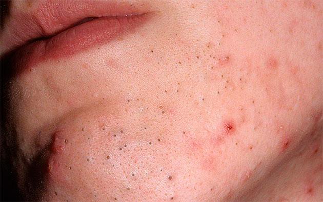 Виноградный клещ на лице человека. Подкожный клещ на лице: лечение, фото