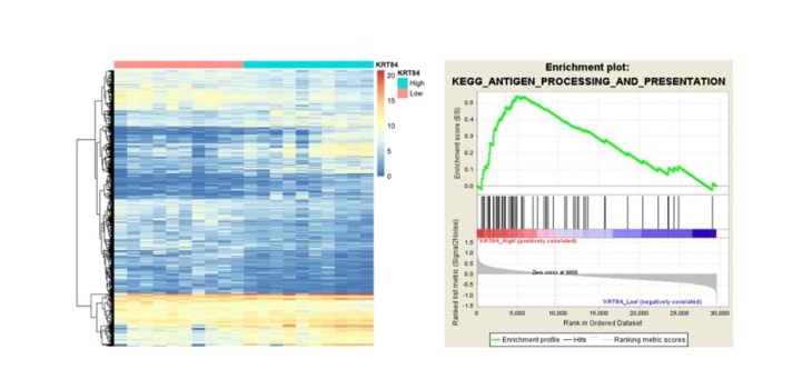 Figure 5. KRT84 might involve in the carcinogenesis and prognosis of OSCC through reulating antigen processing and presentation pathway (A) The expression heatmap of 2301 DEGs in KRT84_High and KRT84_Low groups. (B) The antigen processing and presentation pathway was significantly activated in KRT84_High samples.