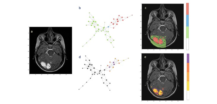 Figure 6. Hierarchical segmentation of intra-tumoral tissue heterogeneity. The extension of the ependymoma is shown in (a) the T2-weighted image. (b) The complex network obtained from the acquired MRI features by the means of two subnetworks and one bridge node. (c) Back-projection onto the anatomical image. (d) Hierarchical analysis performed over the tumor subnetworks, with highlighted nodes according to the degree values (from yellow low-degree to violet high-degree). (e) Segmentation of intra-tumoral tissues by node hierarchies.