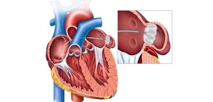 Watchman Device Transcatheter closure of the left atrial appendage