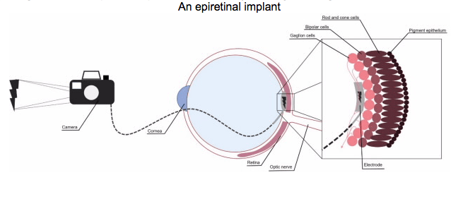 hight resolution of the future of retinal implants