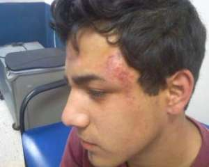Photo/Josue Muniz: Recent incidents have put into question the tactics used by San Bernardino City Unified School District police officers at school sites and whether their conduct is justified. In Nov. 2012, Josue Muniz, 20, was arrested for hugging his girlfriend during lunch time at Arroyo Valley High School--an incident that led to him being pepper sprayed.