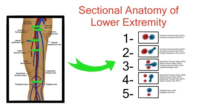 sectional anatomy of lower extremity veins