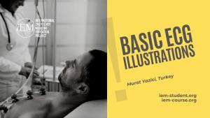 basic ecg illustrations