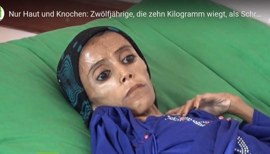 Hungersnot im Jemen und Schweizer Kriegsmaterialexporte