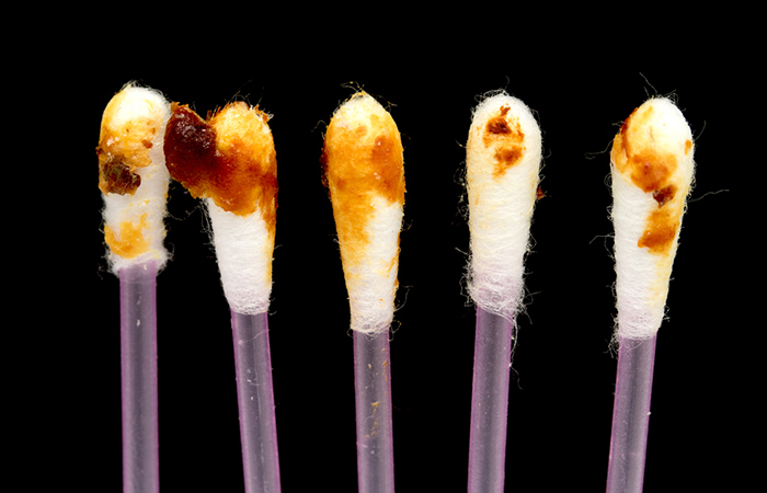 The Color And Texture Of Your Earwax Reveals Everything ...