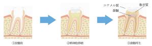 歯髄幹細胞を用いた再生医療