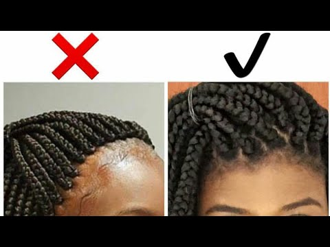 Tips For Avoiding And Taking Care Of Braid Bumps Igbocurls