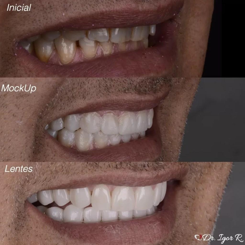 Lentes de Contato Dental em Fortaleza | Porcelana | Mock Up Dental | Dr. Igor Ribeiro
