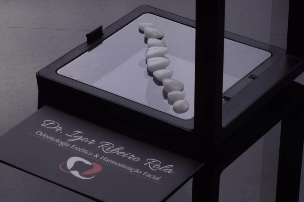 Lentes de Contato dental em fortaleza Dr. Igor Ribeiro