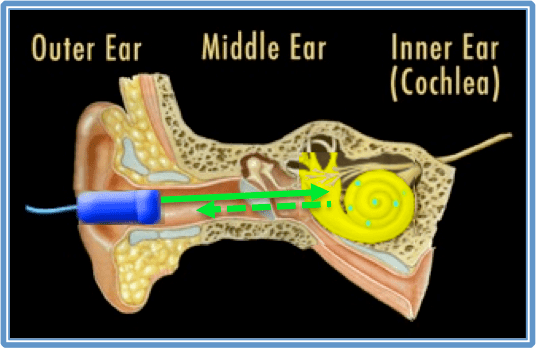 December Probes & Tips  Understand Basic Ear Anatomy and the OAE Screening Process