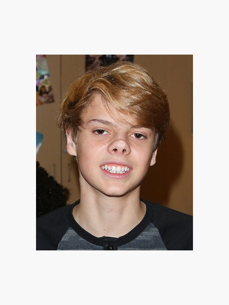 jace norman nose taped