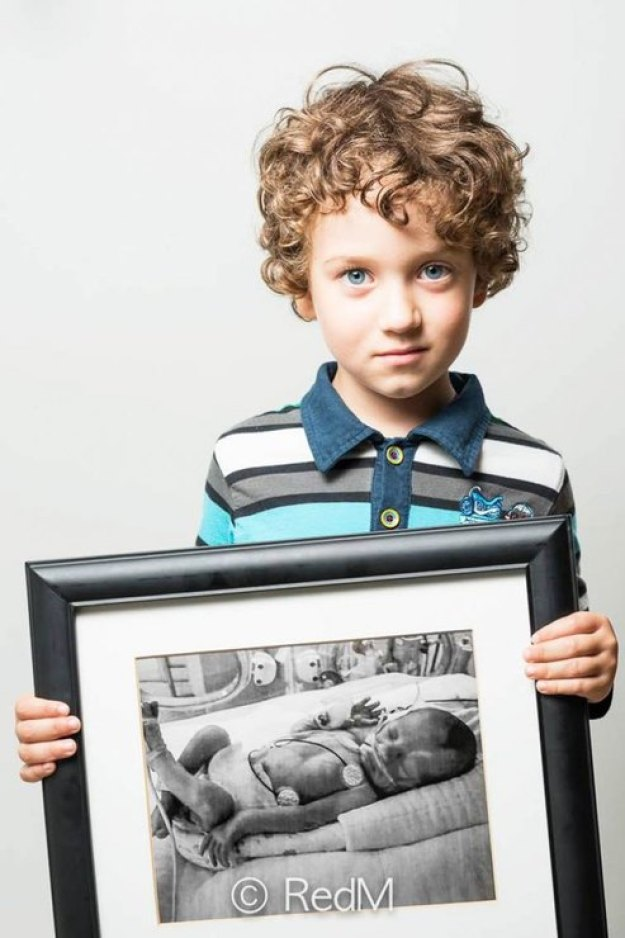 мальчик родившийся раньше срока