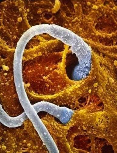 4. Встреча двух сперматозоидов с яйцеклеткой, произведенной женским яичником