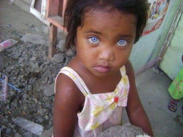 голубые глаза у детей