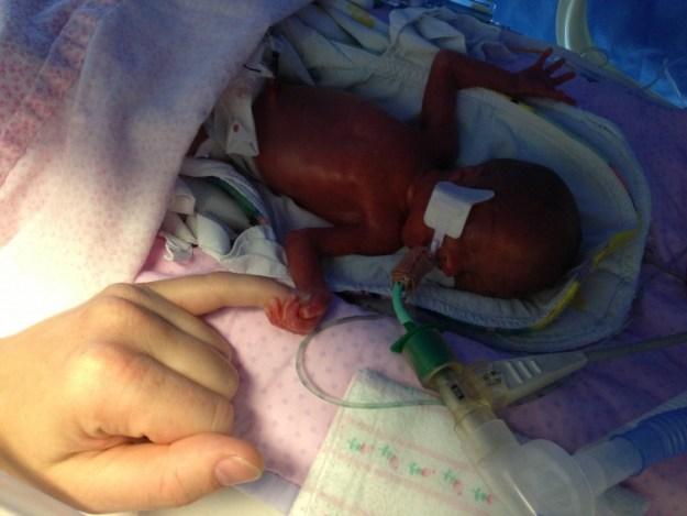 День 1. Эди родилась с весом всего 570 г и с 10-процентным шансом выжить