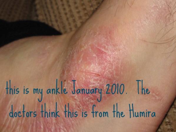 ankle rash from humira