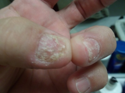 humira fingernail rotting
