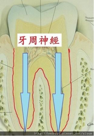 「神經不是抽掉了,怎麼還會痛?」牙醫師告訴你:根管治療完,牙齒會痛的2原因-健康特搜簿-良醫健康網