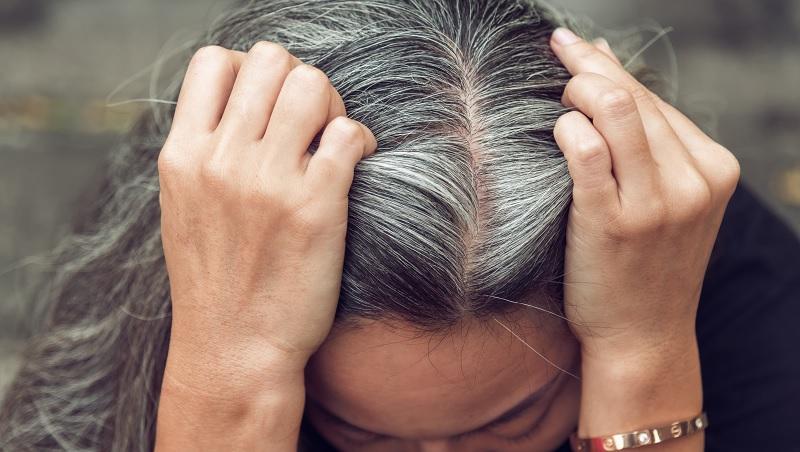 白頭髮可以拔嗎?怎樣才能變回黑髮?中西醫教你正確的白頭髮預防之道-良醫劃重點-良醫健康網