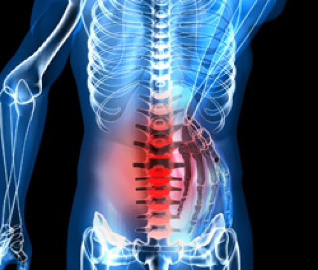 Orlando Herniated Disc Therapy