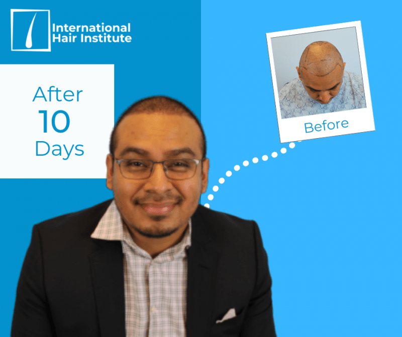 Hair Transplant Results chicago