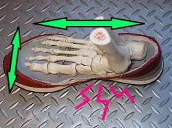 有痛性外脛骨水平